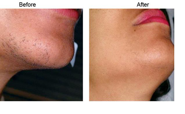 How to eliminate chin hair-2113