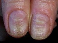 8 Common Nail Conditions Linked to Serious Diseases That You Shouldn't Ignore – MayaWebWorld