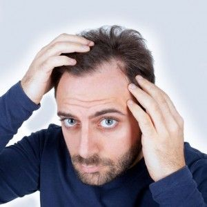 34 best images about Hair Loss on Pinterest | Male ... Dry Hair Men