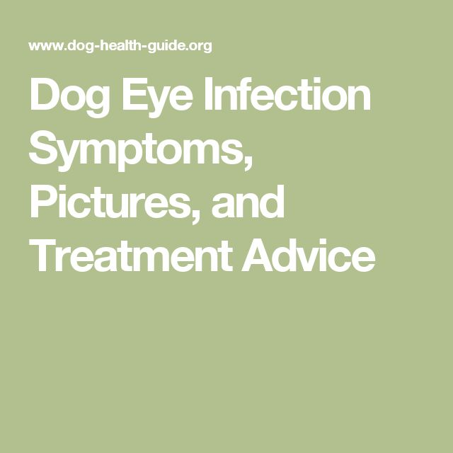 17 Best Ideas About Eye Infections On Pinterest For Eyes