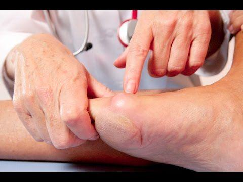 el atun es malo para el acido urico para que sirve la gota gruesa como bajar la inflamacion de los pies por acido urico