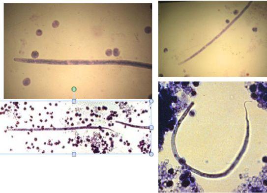 microfilariae knott's test - Google keresés