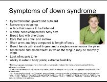 This is showing the symptoms and signs of down syndrome.