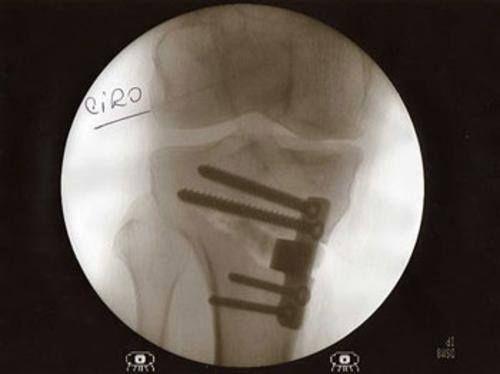 """""""Les cuento que el pasado 14 de setiembre me operé de la pierna derecha. Me hice una osteotomía. Esta operación consiste en un corte en la tibia, el hueso que está debajo de la rodilla. Una vez cortado el hueso se pone en línea con el fémur y en el espacio libre se rellena con un taco. Debido a mi chuequera y las sucesivas operaciones de meniscos y ligamentos ya tenía un dolor crónico y una creciente artrosis. Ahora la pierna está derecha... Ciro"""