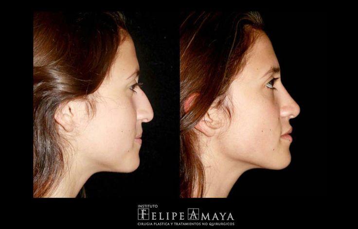 Cirugía de Nariz, la combinación perfecta entre arte y ciencia www.felipeamaya.com www.cirugiadenariz.com #InstitutoFelipeAmaya