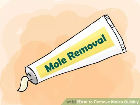 Image titled Remove Moles Quickly Step 01