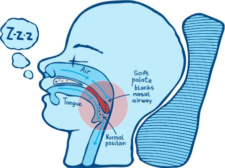 how to stop snoring instantly