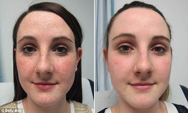 Before and after: A new craze for having freckles removed is sweeping the beauty world. Sa...