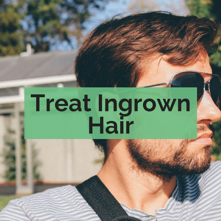 Everything you need to know about ingrown hair