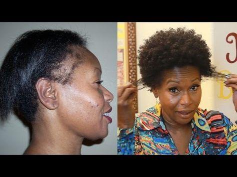 Amincissement des cheveux dans les femmes noires - Coiffures élégantes et modernes