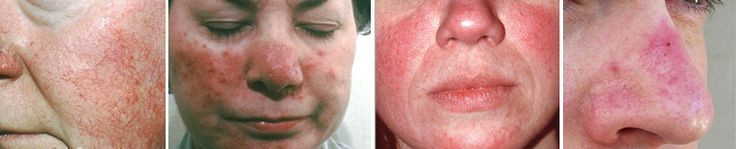 "Understanding how to treat rosacea is of course, the number one question people ask once their symptoms are diagnosed. The answer however, depends on a few things, including what symptoms you are presenting with, what triggers those symptoms and what your preferred philosophy is on health care. Although there is no cure for rosacea, it is most certainly manageable. By ""manageable"" we mean that with the right approach (for... FULL ARTICLE @ http://rosacea-skin-care.com/how-to-treat-ro..."