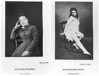 """THERE'S A NEW MOVIE IN THEATERS NOW (JUNE 2012)CALLED """"HYSTERIA"""" ABOUT THE INVENTION OF THE VIBRATOR WHICH DOCTORS USED TO """"CALM"""" WOMEN OF THEIR MANY """"NERVOUS"""" MOODS. SERIOUSLY. 1878"""