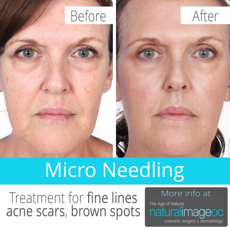 Best 25 microneedling for acne scars ideas on pinterest best 25 microneedling for acne scars ideas on pinterest dermaroller for stretch marks treatment for acne scars and stretch mark treatment ccuart Choice Image