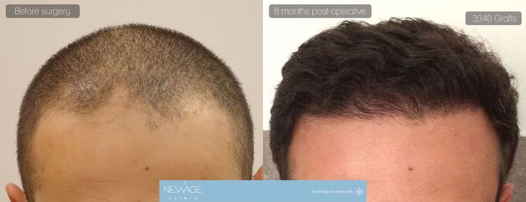 Result of 8 months - 3340 Grafts FUE Hair surgery in a single session performed by Ozge Ergun, MD  /// For more information 📲 WhatsApp: 0090543 470 47 09  ///  #hairtransplant #haartransplantation#fuehairtransplant #haarverlängerung #hairtransplantation #greffedecheveux #trasplantedepelo #haartransplantatie #trasplantecapilar #trapiantodicapelli #pérdidadecabello #haarlos #Alopezie #Haarausfall #Haarverlust #capillumtraducere #hårtransplantasjon #пересадкаволос #毛髪移植 #모발이식#ishrs