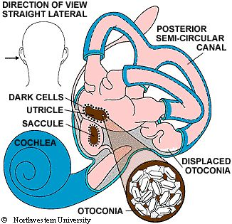 "ve you ever heard of Benign Paroxysmal Positional Vertigo (BPPV), or know someone suffering from it? BPPV, a form of vertigo, is thought to cause dizziness from debris that builds up in the inner ear (utricle). This debris is referred to by some as ""ear rocks"" or otoconia."