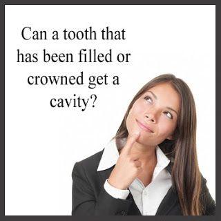 Brampton Dentist, Dentist in Brampton, Cavities, Crowns, Brampton Family Dentist,