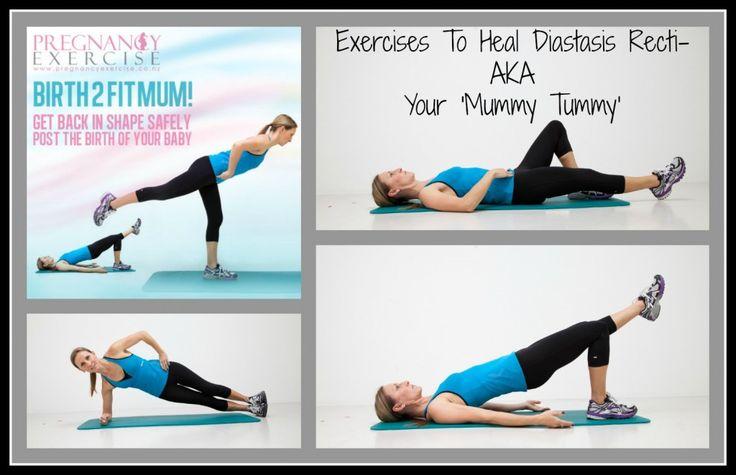 Postpartum exercises for Diastasis Recti: Postnatal exercises to heal your mummy tummy AKA Diastasis Recti #postnatalexercise #postnatalfitness #postpartumexercise