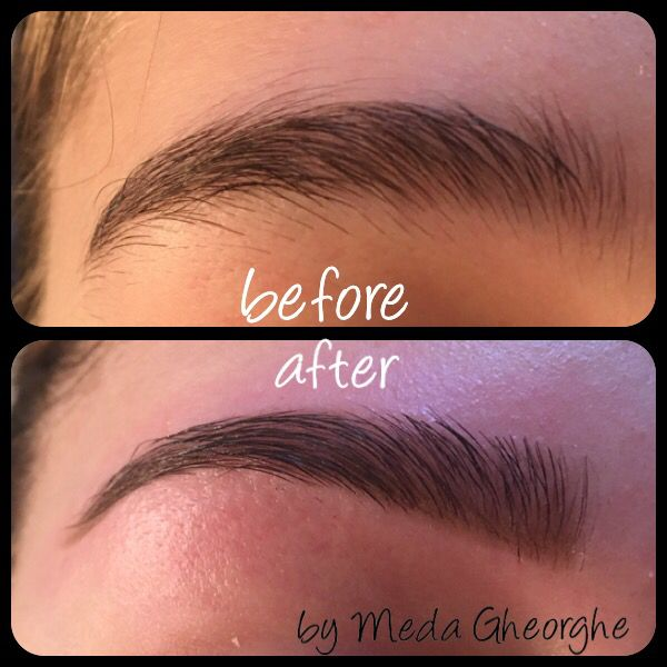 Brow before&after