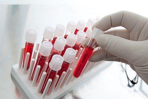 Расшифровка – общий анализ кровиИсследование крови позволяет правильно оценить общее состояние человека и понять, насколько эффективно осуществляется лечение.Анализ крови подразумевает определение концентрации гемоглобина, количества эритроцитов, лейкоцитов, тромбоцитов, подсчет лейкоцитарной формулы. Кроме того, он дает представление о цветном показателе и определенные данные о свертывающей системе крови.Общий анализ крови: уровень гемоглобинаГемоглобин является основным белковым веществом…