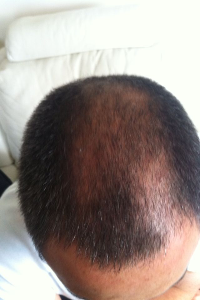 5 weeks of Densifique  a hair cut!
