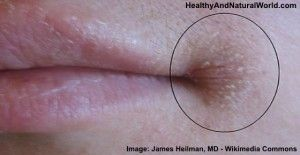 Natural Home Remedies for Angular Cheilitis (Cracked Corners of the Mouth)