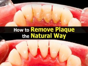Best 25+ How to remove plaque ideas on Pinterest | Plaque removal ...