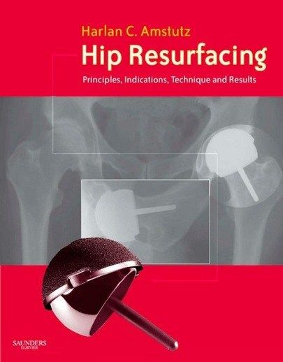 3047 Hip Resurfacing principles indications technique and results