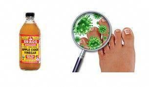 Nagelpilz ist eine Pilzinfektion in einem einzelnen oder mehreren Nägeln. Die I…