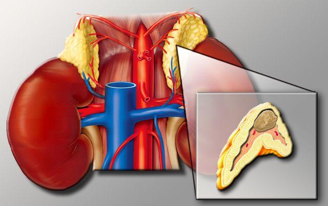 Pheochromocytoma Natural Cure
