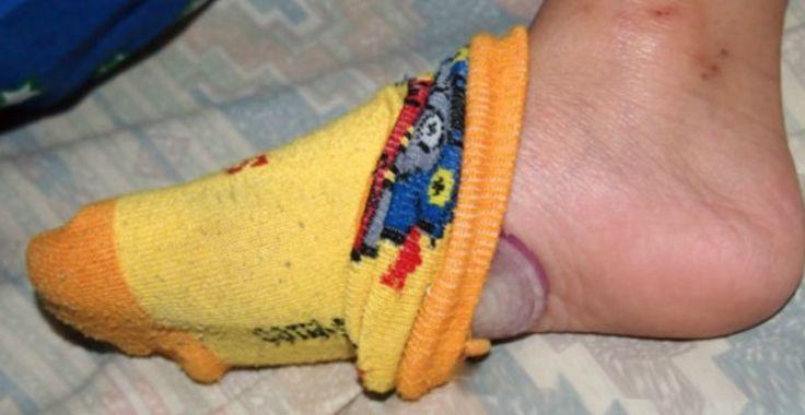Jede Nacht tut er eine Scheibe Zwiebel in seinen Socken rein. Und das solltest du auch tun. | LikeMag