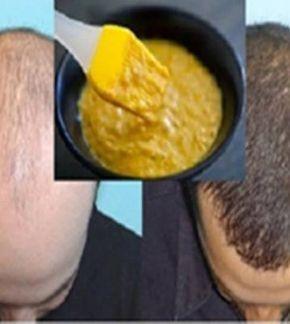 férfiaknak hajhullás ellen