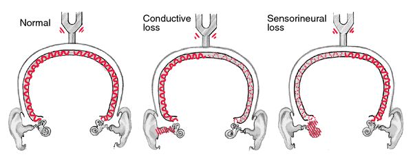 """A. Normal - sound hear equally in both ears B. Conductive Loss - sound materializes to the """"bad"""" eard/t background room noise which masks hearing in the normal ear.  The """"bad"""" ear is not distracted by background noise and therefore has a better chance at hearing the bone-conducted sound.  C. Sensorineural Loss - sound lateralizes to the """"good"""" ear because the bad ear has nerve loss and cannot perceive the sound."""