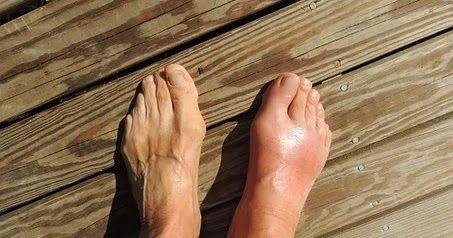 النقرس تجنب مسببات النقرس ما هو النقرس النقرس هو نوع من إلتهاب المفاصل الذي يسبب ألما في مفاصل Gout Treatment Essential Oils For Gout Home Remedies For Gout