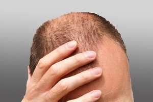 Die Technik der FUE Eigenhaartransplantation bietet eine fantastische Option bei Alopezie. Bei einer Haarverpflanzung in der Türkei werden Sie von qualifizierten Fachärzten mit zeitgemäßen Verfahren behandelt.
