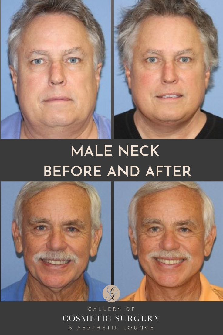 Men/male neck before and after pictures -As an experienced facelift surgeon, Dr….