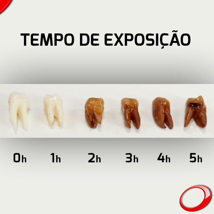 Les boissons acides affaiblissent les dents, le saviez-vous ? Bien que les dents soient faites de minéraux et considérées comme l'un des éléments le plus dur de notre corps, l'émail de la dent humaine ne résiste pas aux boissons acides, comme par exemples les boissons gazeuses et même certains jus de fruits naturels. ………………… www.pnid.fr #dentiste #implants #sourire #clinique