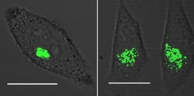 Golgi Lights The Golgi apparatus in a cancer cell glows green when a fluorescent probe binds the enzyme COX-2 (left). Six hours after treatment with chemicals to induce apoptosis, the Golgi apparatuses in the cells have fragmented (right). Scale bar is 0.5 µm. Credit: J. Am. Chem. Soc.