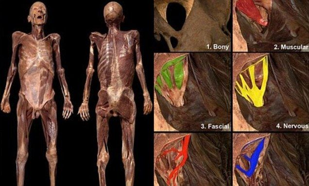 Medical website lets you virtually dissect dead bodies