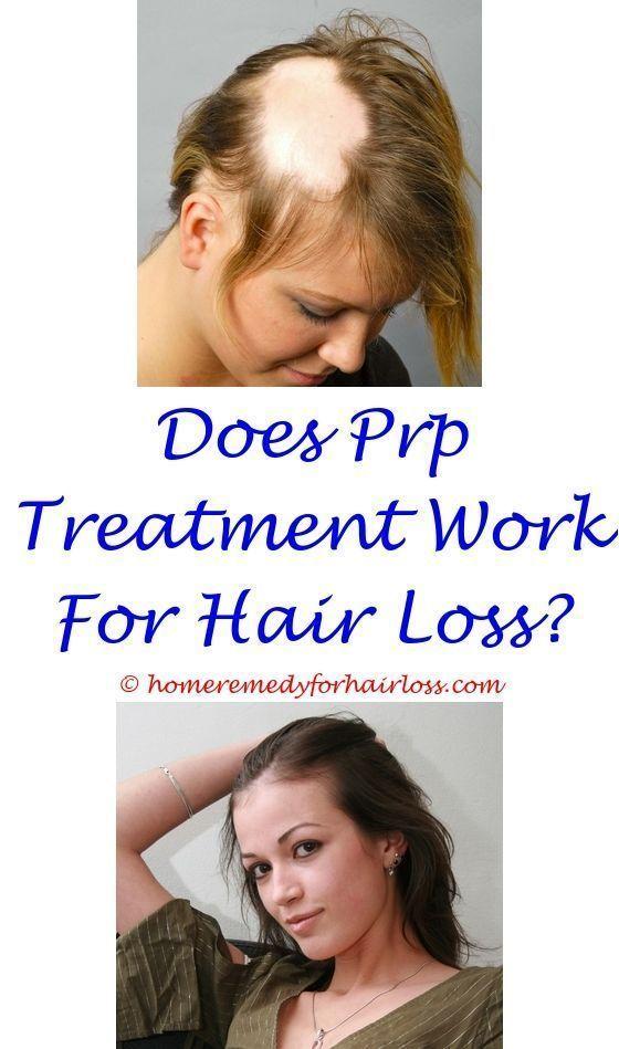 sugar hair loss forum - homeopathy hair loss treatment in