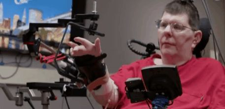 Paralyzed man can move his arms again thanks to brain-connected prosthesis