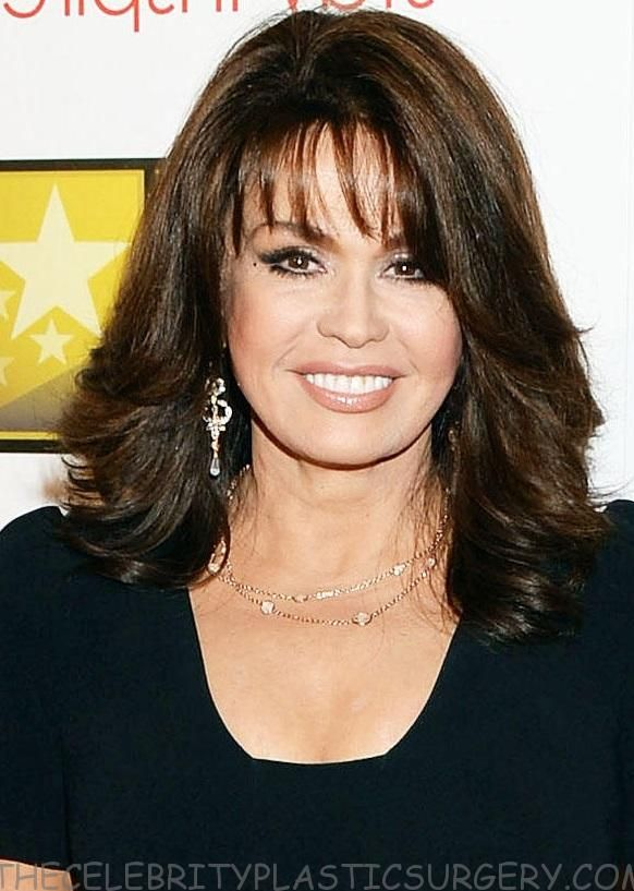 Contents1 Has Marie Osmond Had Plastic Surgery?2 About Marie Osmond:2.1 Marie Osmond Age:2.2 Marie Osmond Children:3 Marie Osmond Plastic Surgery Rumor:4 What about Marie Osmond Facelift Plastic Surgery?5 Marie Osmond Had Nose Job or Not?6 Marie Osmond Appearance and Her Increasing Age:7 Did Marie Osmond Have Boob Job?8 Marie Osmond Before and After Plastic Surgery:9 …