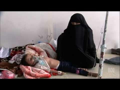 The Children Suffering In Yemen (World Silent)