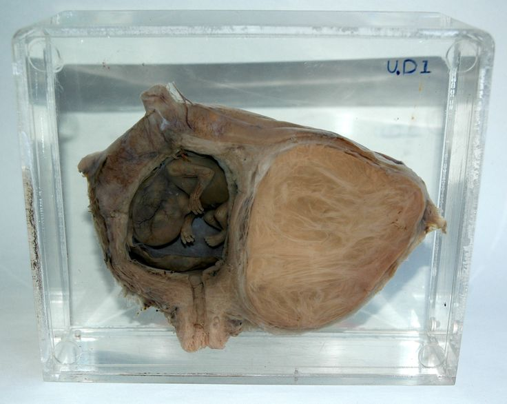 This particular specimen belongs to UCL Pathology Collections, and is currently on display in the Foreign Bodies exhibition. The anonymous woman patient underwent a hysterectomy most likely sometime in the early 20th century, in order to remove the sizable uterine fibroid, which can be seen on the right side of the image. However, on closer examination of the image, we see on the left side a preserved fetus, frozen in development, somewhere between 8-11 weeks.