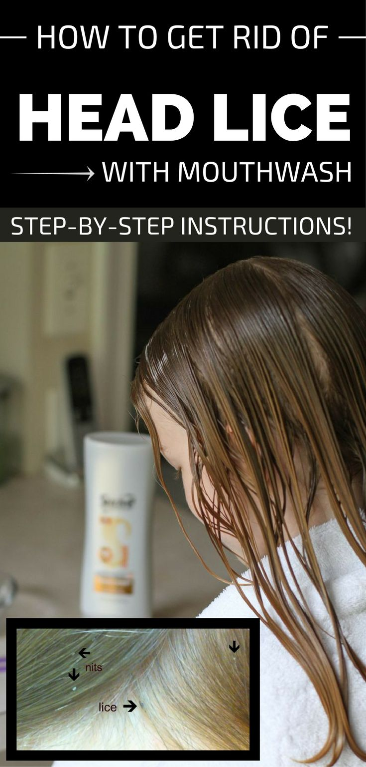 How To Get Rid Of Head Lice With Mouthwash