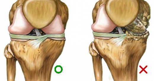 alimenti rigenerare cartilagine
