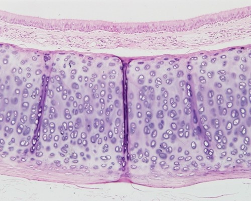 Trachea, Cat, Hyaline Cartilage x10 (H stain)