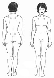 "Basically the dots represent ""trigger points"", when the doctor puts pressure lightly on the trigger points and you have fibro it will hurt you at a more chronic pain than normal people... if you react to so many of these trigger points it is a good indication that you have Fibromyalgia."