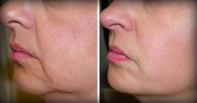 Health And Wellness: No More Wrinkles And Sagging Skin On Your Face - 2...