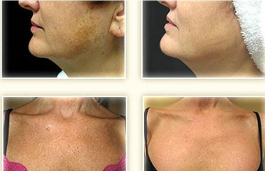 57 Best Ipl Hair Reduction Amp Skin Rejuvenation Images On