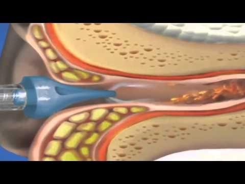 Como limpiar los oídos sin usar hisopos - YouTube